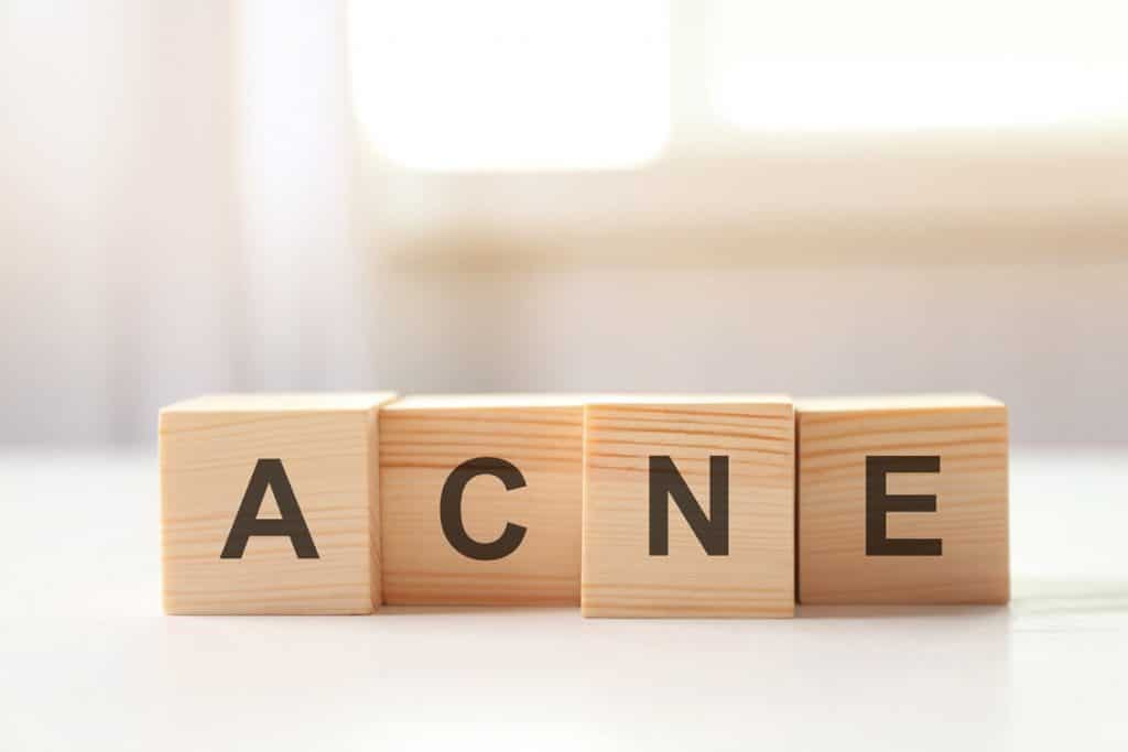 article on acne natural treatments - lavender natural cosmetic