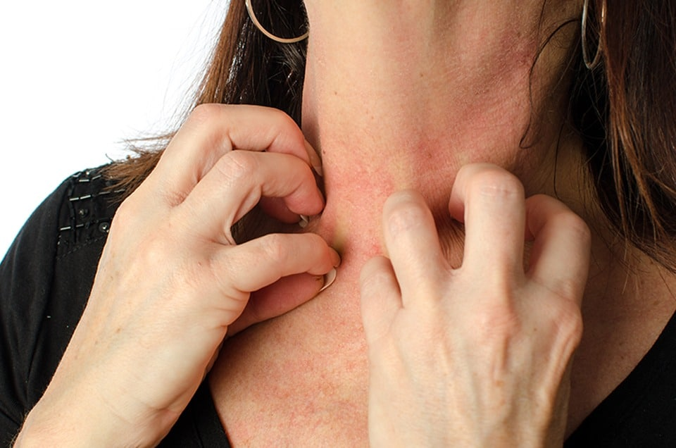 skin asthma
